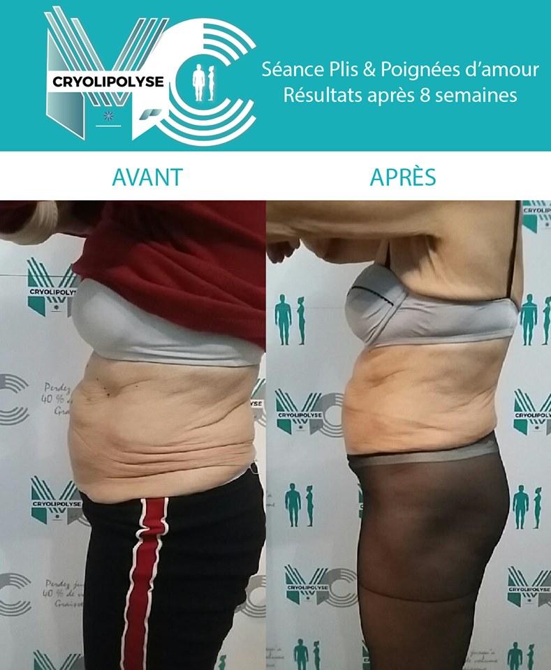 Séance Plis & Poignées d'amour : résultats après 8 semaines
