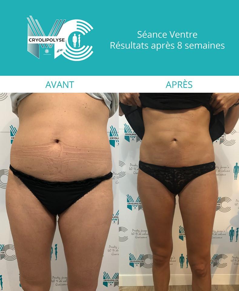 Séance ventre : résultats après 8 semaines