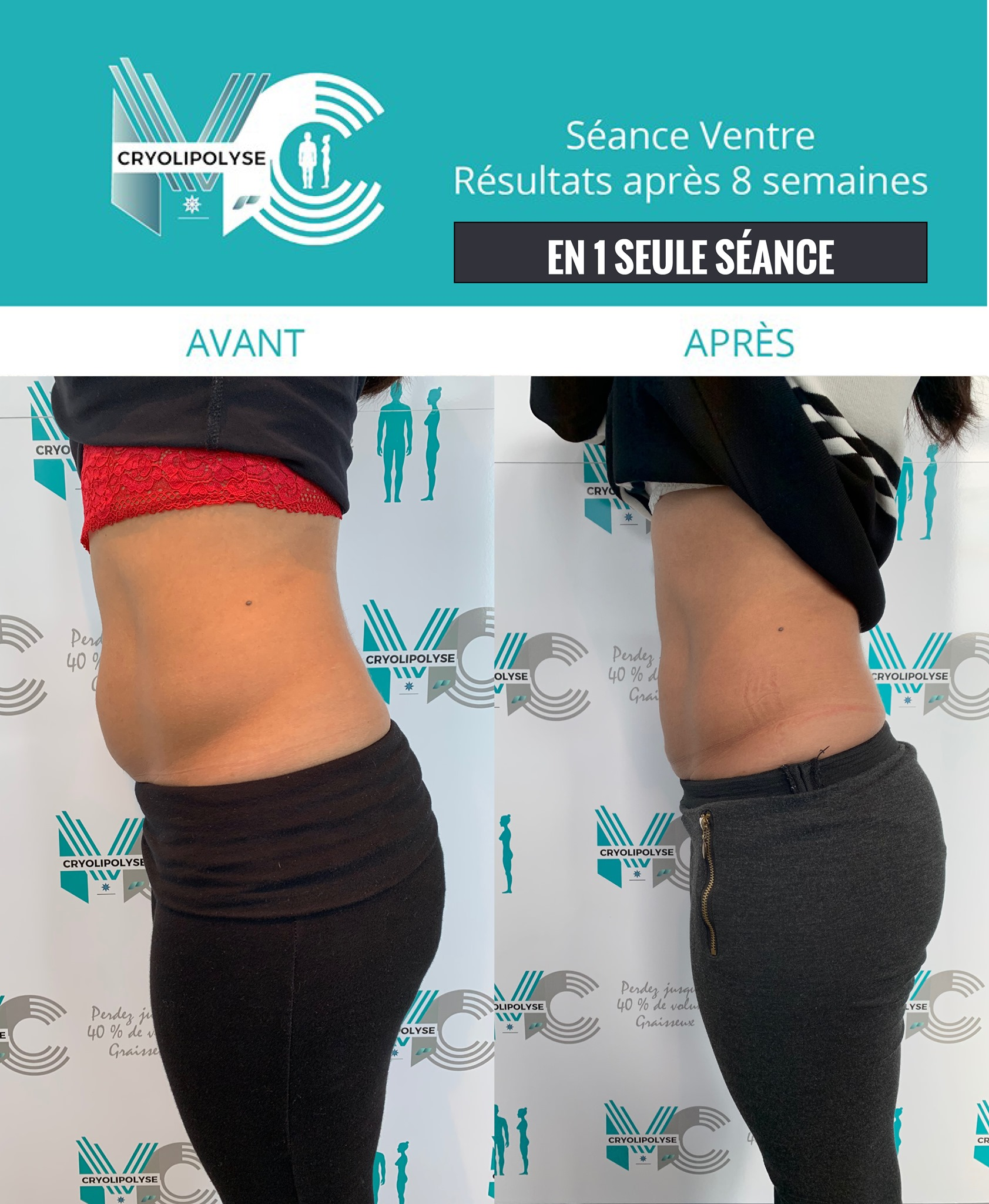 Séance ventre, avant/après 8 semaines