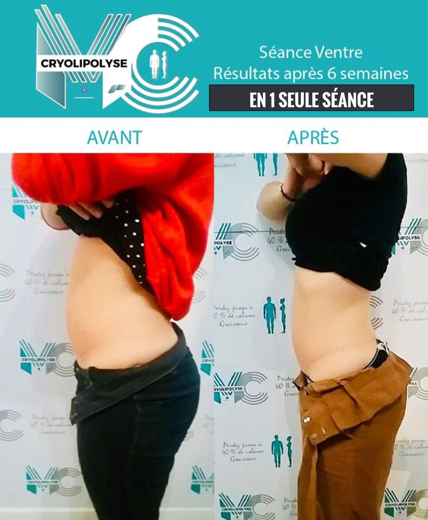Séance ventre AVANT/APRES 6 semaines